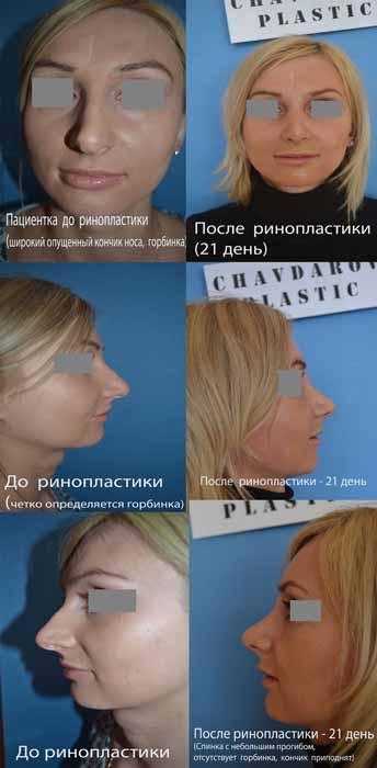 Проститутки Алматы T